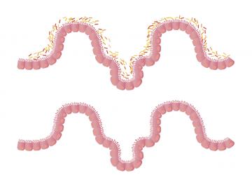 sindrom propusnih crijeva leaky gut prirodno liječenje - prirodni lijekovi za hiperpermeabilnost