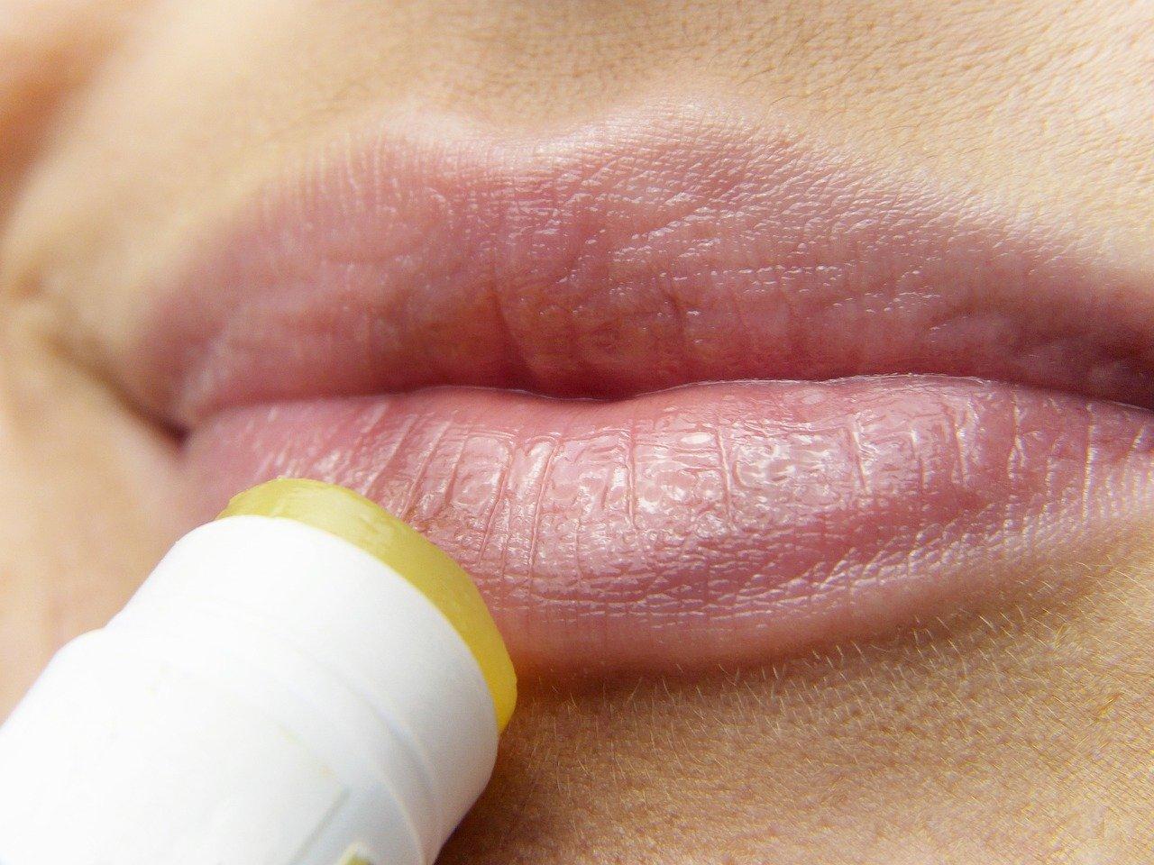 kako napraviti prirodni balzam za usne sa hijaluronskom kiselinom